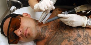 removal tattoo artists 12 300x150 Tattoo Removal   What Tattoo Artists Think About It